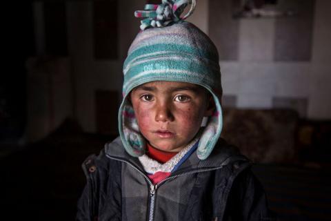 Saeed (3), dječak iz Sirije  (foto Save tjhe Children)
